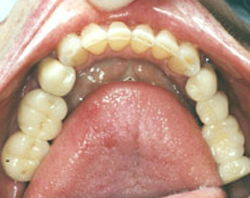 asheville-dental-implants